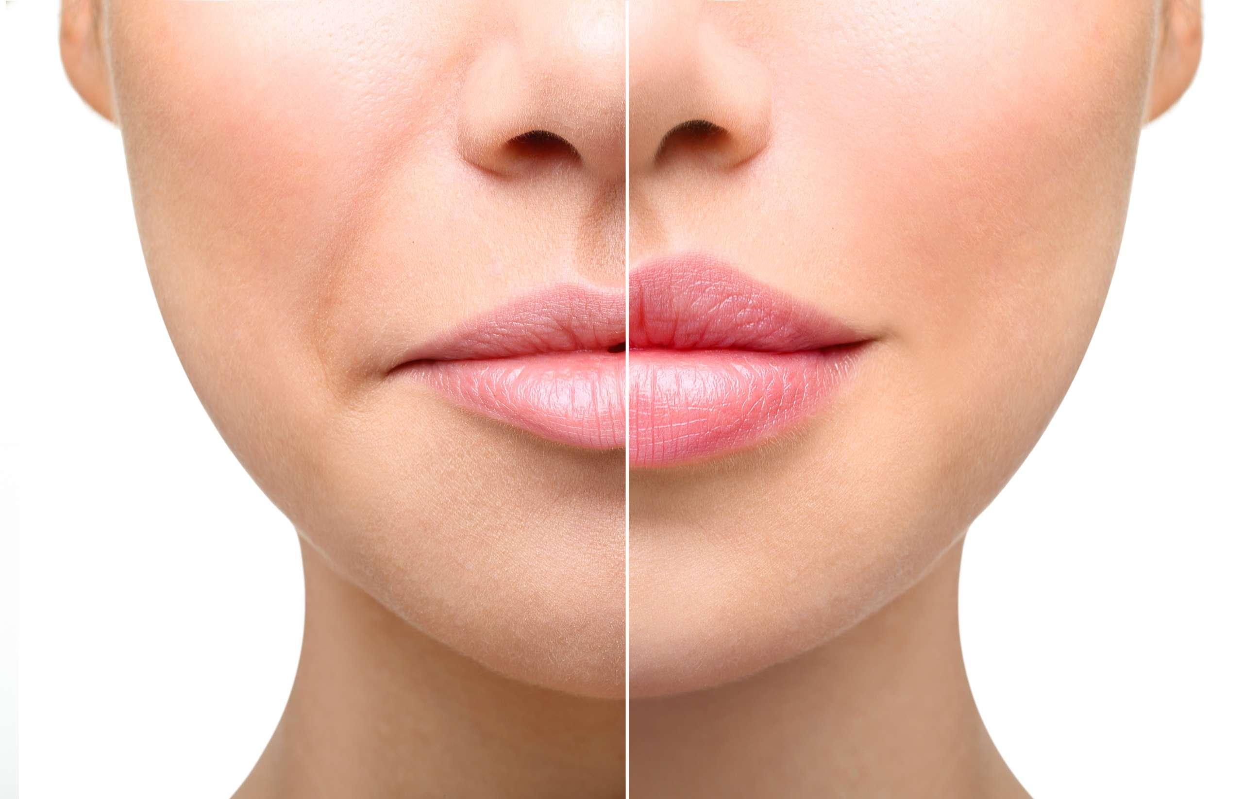 Zabieg powiększania ust - medycyna estetyczna